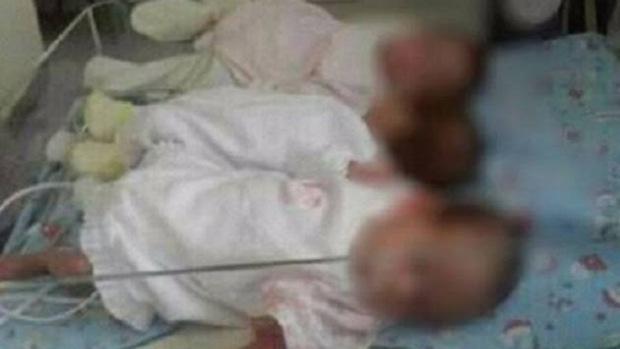Trillizas nacidas prematuras fueron abandonas en hospital: Buscan darlas en adopción